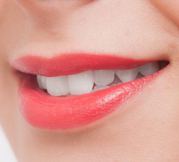 フッ素を塗布した女性の歯